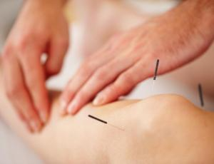 acupuncture, naturopathy knee needles feel